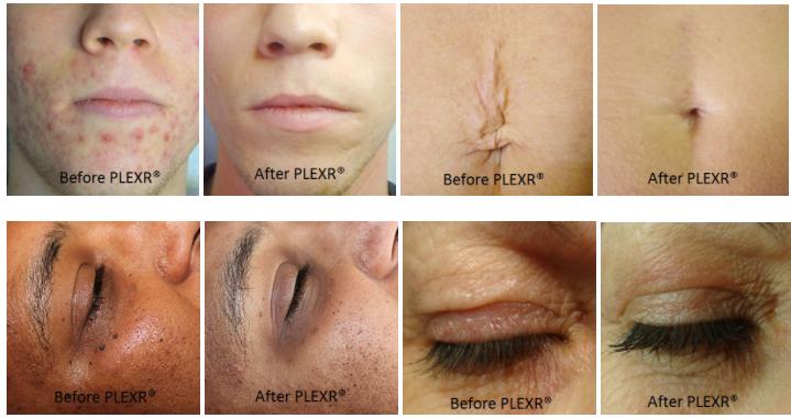 PLEXR-available-at-the-cedar-house-clinic